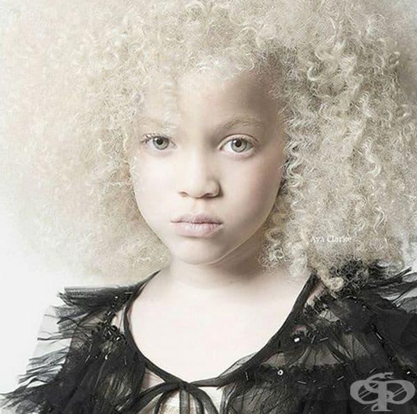 Афроамериканско момиче албинос.