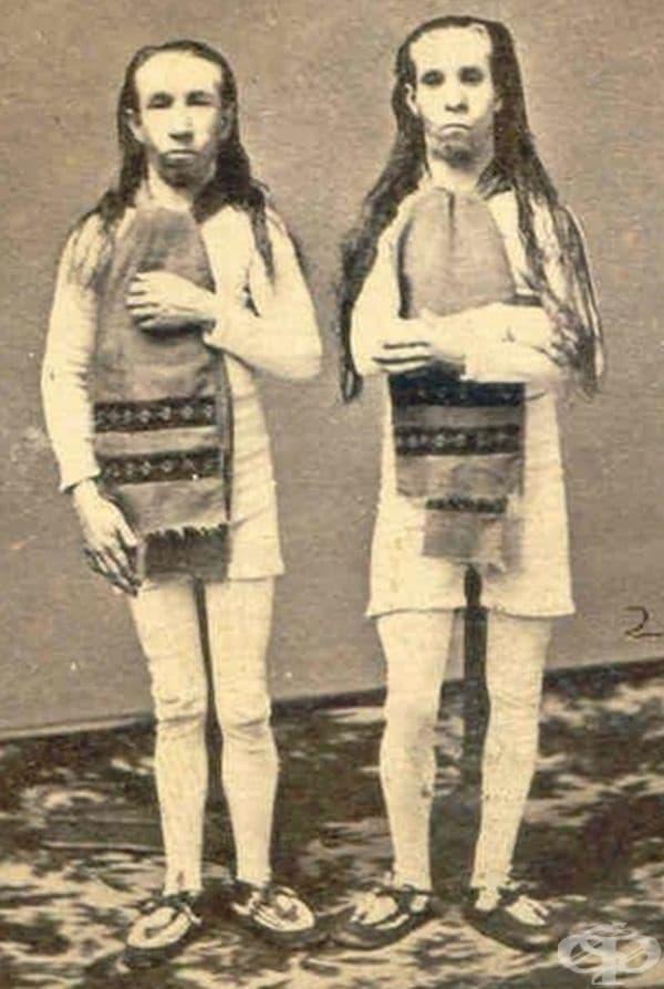Неработоспособни непълнолетни близначки, продадени на цирка.