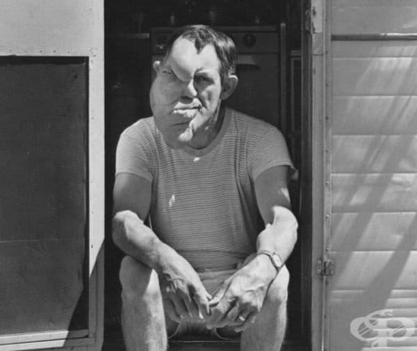 """Робърт Оуен Мелвин е известен като """"Човекът с две лица"""" и е страдал от неврофиброматоза. Бил е много амбициозен и дори е завършил училище, след като е напуснал цирка."""