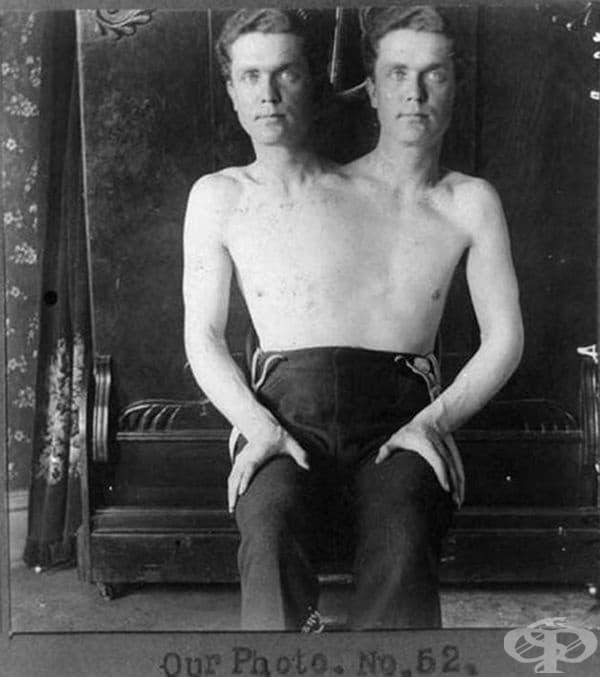 """Сиамските близнаци са били представяни като """"Човекът с две глави""""."""