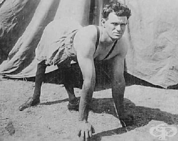 """Робърт Хъдълстън е известен като """"Човекът - пони"""" и е страдал от деформация на извитото коляно."""