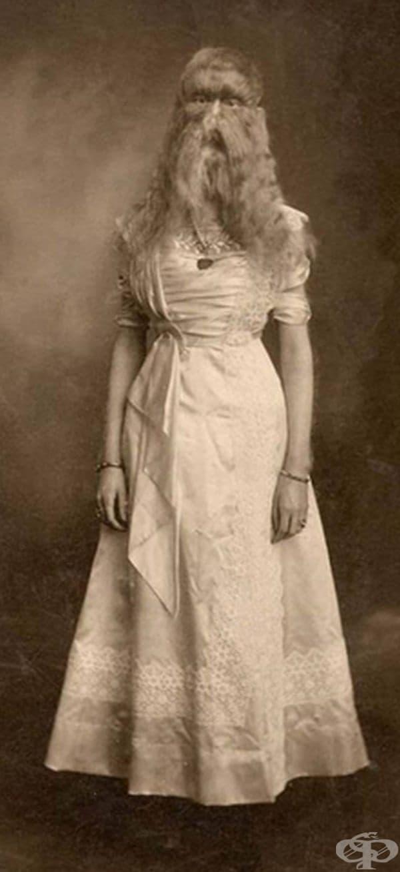 """Това момиче е било известно като """"Космато дете от Минесота""""."""