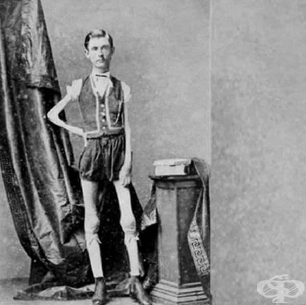 """Исак Спраг е бил представян на публиката като """"Жив скелет""""."""