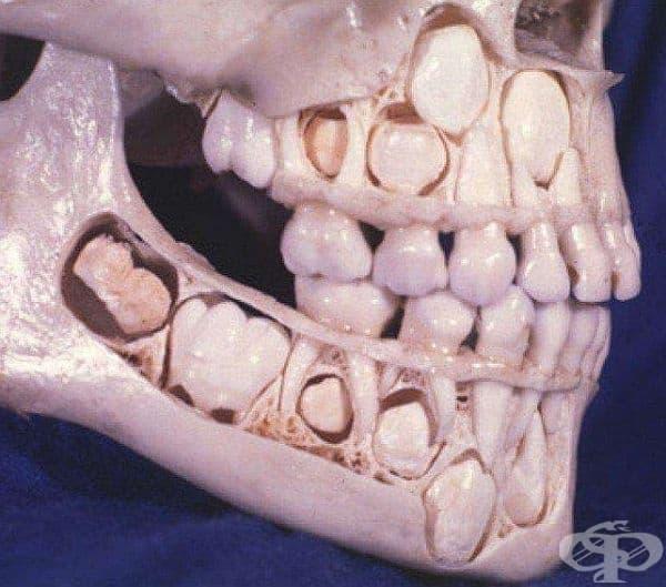 Това е черепът на дете, което още не е изгубило млечните си зъби.