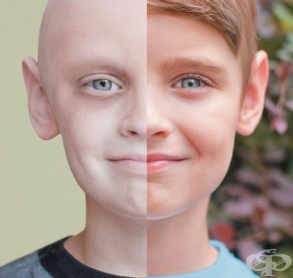 Момчето, което победи рака.