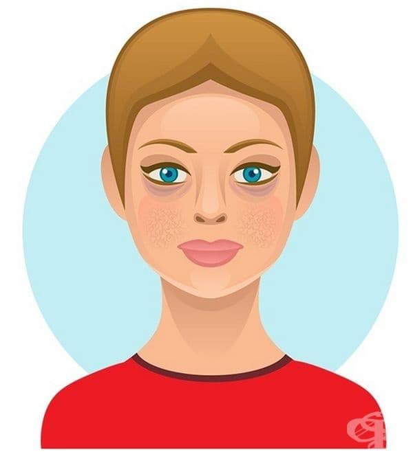 Суши. Консумациата на този деликатес води до преждевременно стареене и причинява акне. Солта дехидратира и изсушава кожата, а задържането на вода придава подпухнал вид на лицето.