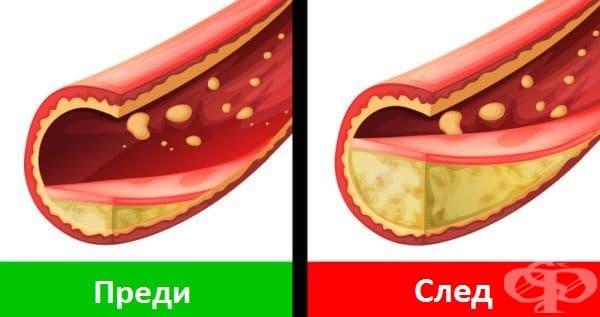 Качването на килограми повишава нивата на холестерола, а това-риска от сърдечни заболявания и образуването на мазнини по кръвоносните съдове. Тези мазнини пречат на кръвта да преминава свободно и сърцето не получава достатъчно кислород, а мозъкът-кръв.