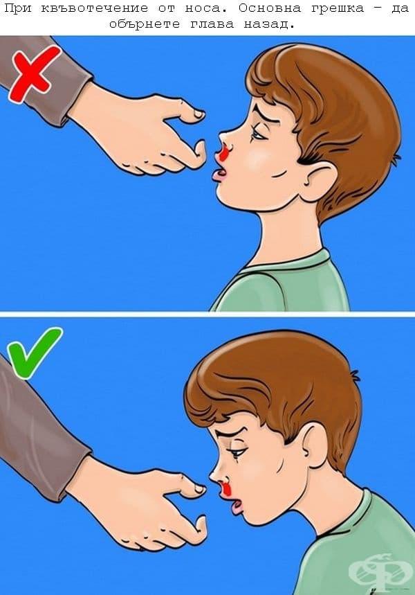 Пострадалият трябва да седне, да наведе глава напред, за да се изтича кръвта навън. Носът се притиска с 2 пръста над ноздрите за 10 минути. При кръвоток над 15 минути е необходима лекарска помощ.