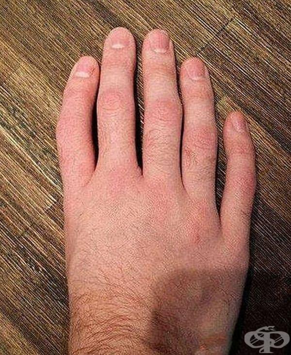 5 пръста, но с друго разположение.