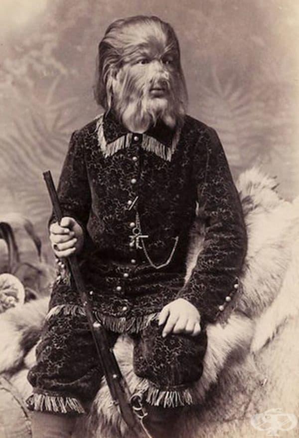 Федор Евтихиев, известен като Джо-Джо, страда от рядко заболяване - хипертрихоза, поради което цялото му лице е покрито с гъста коса.