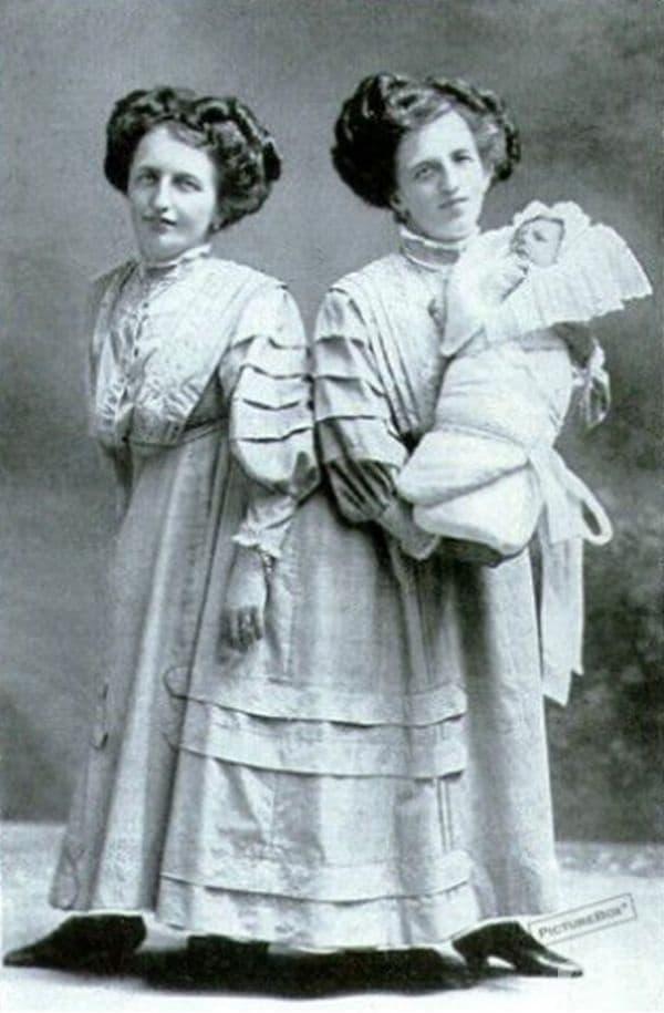 Сиамските близнаци Джоузеф и Роуз Блейс (бебето на снимката е син на Роза).