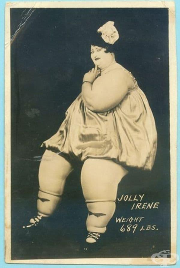 """През 20-те години на 20-ти век затлъстяването се смятало за необичайно и странно. Тази жена е известна като """"Веселата Ирен"""" и е тежала 313 кг."""