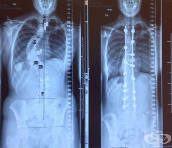 Рентгенова снимка на човек, преди и след операция от сколиоза.