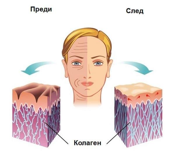 Предотвратяване на бръчките. Ядките съдържат достатъчно количество манган, който помага за производството на колаген - протеин, който отговаря за тонуса на кожата. Витамин Е помага и за борба със стареенето.