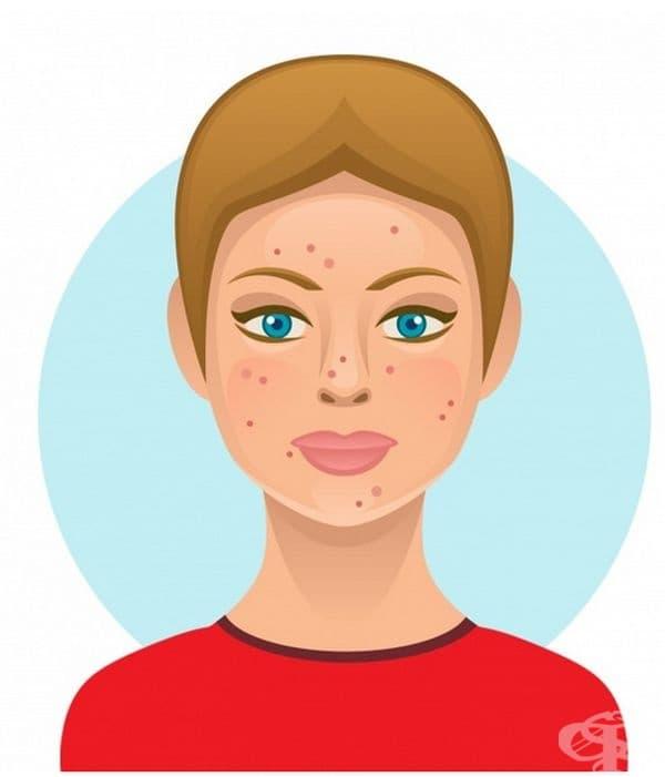 Млечни продукти. Млякото съдържа хормона на растежа и лесно изостря мастните жлези на кожата, като допълнително я омазнява. Освен това много хора имат непоносимост към лактоза, което също води до появата на акне и екземи.