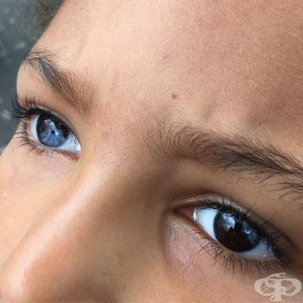 Виждали ли сте някога човек, чийто очи са едновременно сини и кафяви.