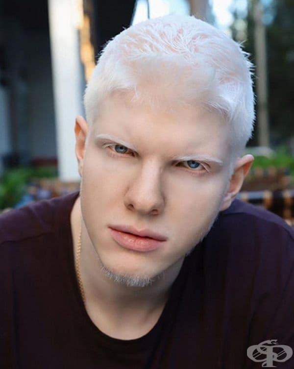 Бера не е единственият албинос в семейството. Има брат на има Цотне, с когото си приличат изключително много. Той също обича музиката.