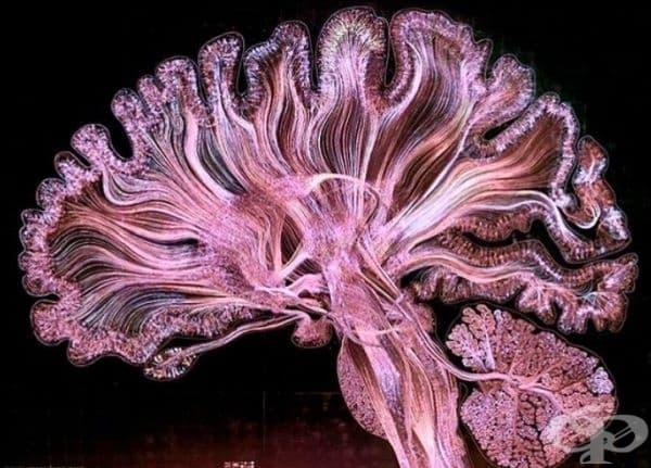 Трактография (специален метод за ЯМР) показва нервните влакна, свързващи различни области на мозъка.