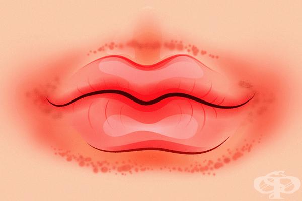 Червен пръстен около устните. Една от най-честите причини за това е дерматитът. Постоянното облизване на устните изсушава кожата около тях и ги прави червени и сърбящи. Обикновените овлажнители са добър вариант за отстраняване на навика.