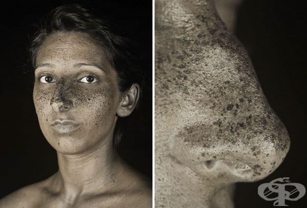 Проектът се състои от 20 снимки с по два кадъра на човек.