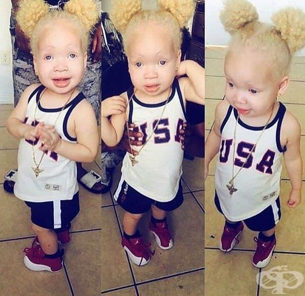 Как изглеждат албиносите от различните раси