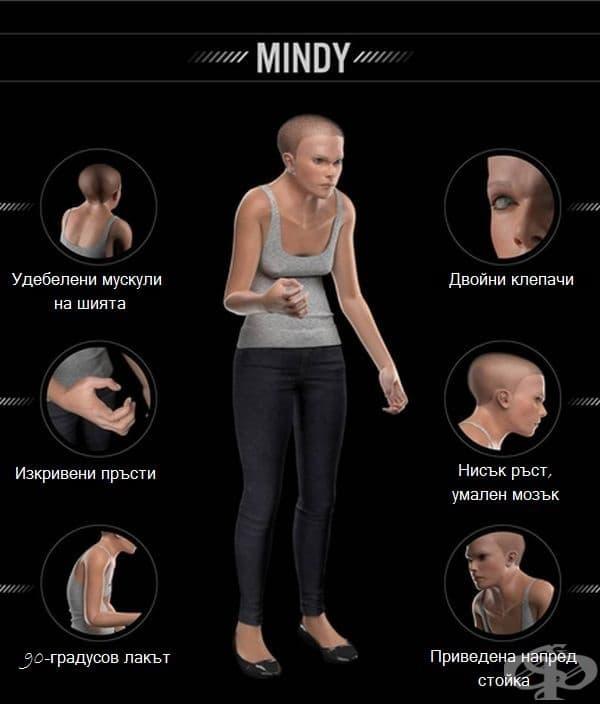 Минди в цялата си прелест. Нарастват опасенията, че радиочестотното лъчение има силно въздействие върху мозъка и може да има сериозни последици, свързани с неговата производителност.
