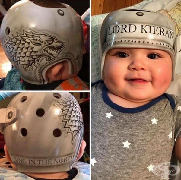 """""""Това е шлемът на моето дете. Главата му вече не е плоска и той се чувства страхотно."""""""