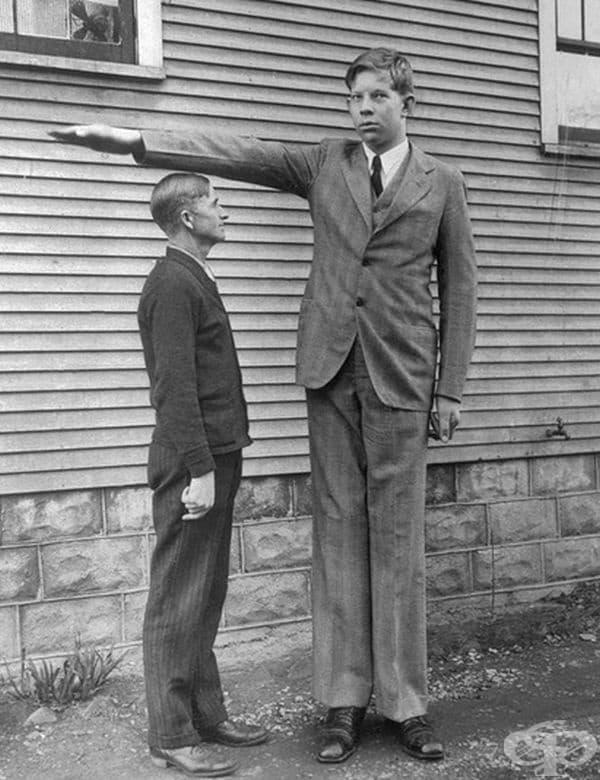 На 8-годишна възраст Робърт Уодлоу е бил с височина 187 см., 90 кг.