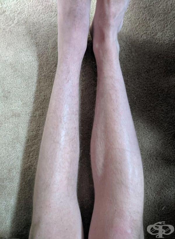 Влошаването на мускула на прасеца след счупване на лява пета.