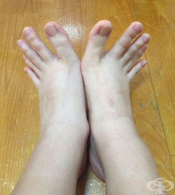 Когато пръстите на краката ви изглеждат точно като на ръцете ви.