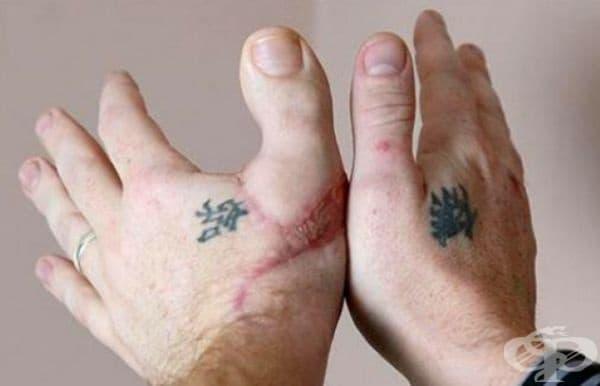 Ръка с трансплантиран палец от крак.