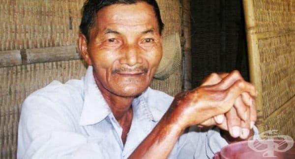 Тай Нгок – Човекът, който никога не спи. Виетнамецът не познава кафето. Роден е през 1942 г. и  от 43 години страда от тежко безсъние. Дори и без да спи, той все още е в психическо здраве и работи всеки ден.