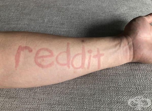 Човекът страда от дермографизъм - състояние, провокирано от леко драскане или натиск върху кожата. Този човек може буквално да пише върху кожата си.