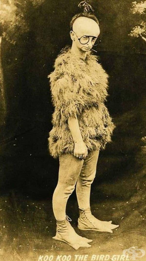 """Мини Улси, известна като Ку-ку, """"Жената - птица"""". Тя страда от рядко вродено скелетно разстройство, наречено синдром на Virchow-Seckel."""