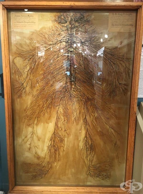 Това е пълна картина на човешка нервна система, анализирана от студенти по медицина през 1925 година. Процесът е продължил повече от 1500 часа.