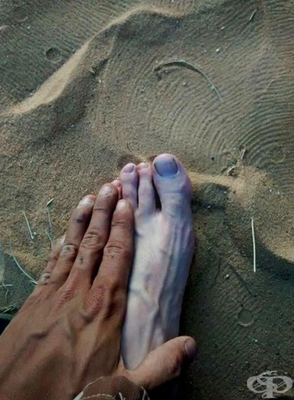 Тен на крака и на ръката на едно и също лице.