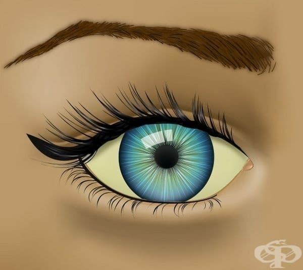 Жълтеникаво оцветяване на очите. Това състояние често се свързва с развитието на жълтеница, която може да се прояви както при новородени, така и при възрастни.