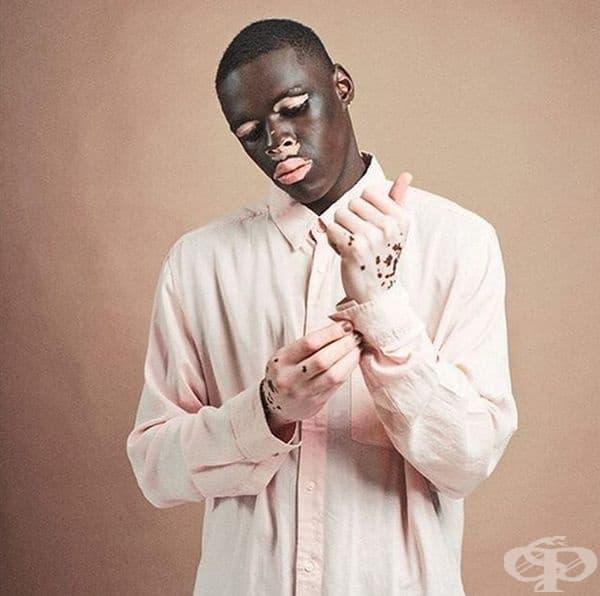Необичайният му външен вид привлича интереса на модните агенции и днес той е модел с развиваща се кариера.