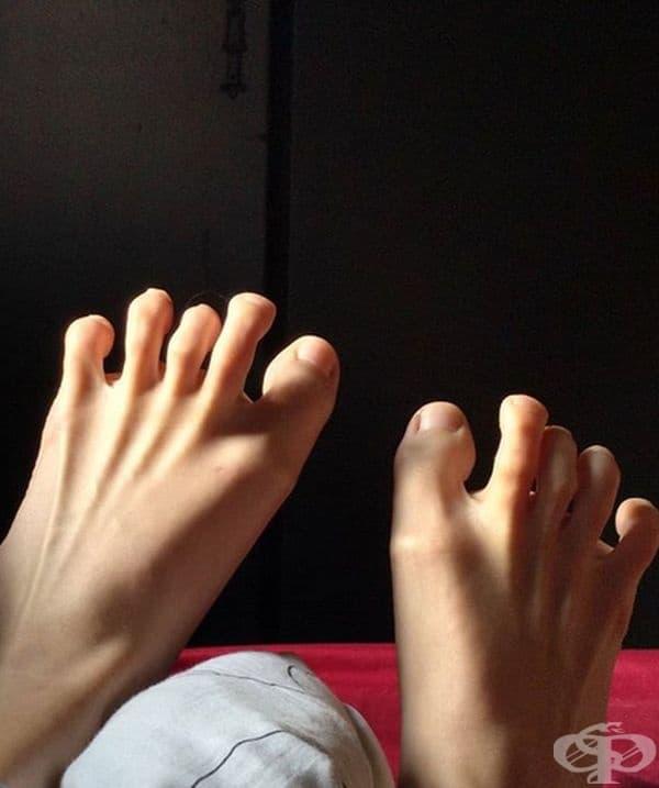 Настървени пръсти на краката в заплашителна позиция.