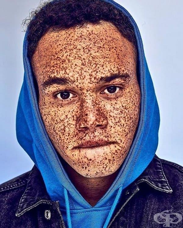 Хамад Джаман - мъж, обсипан с лунички
