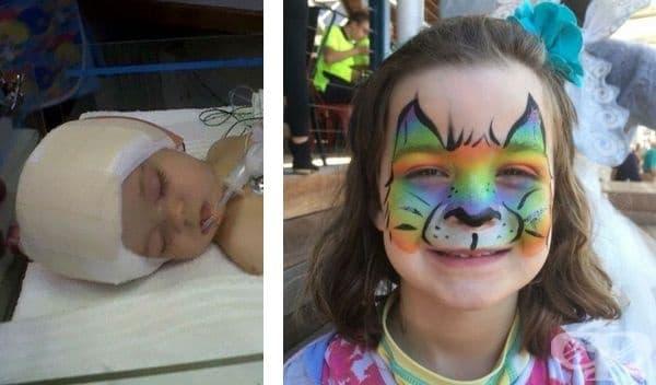 """Дъщеря ми се роди с краниозиностоза. На 8 месеца бе подложена на сложна операция. Днес тя е на 7 години и е здрава и щастлива."""""""