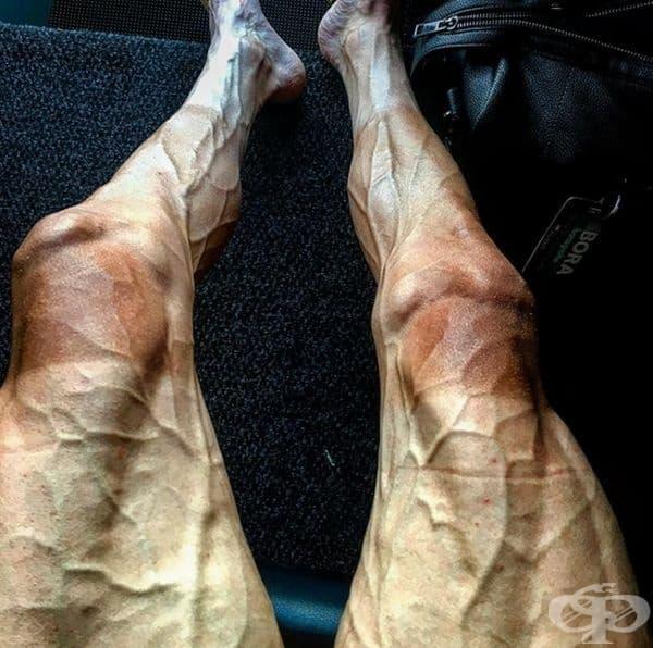 Ето как изглеждат краката на велосипедистите след дълър турнир.