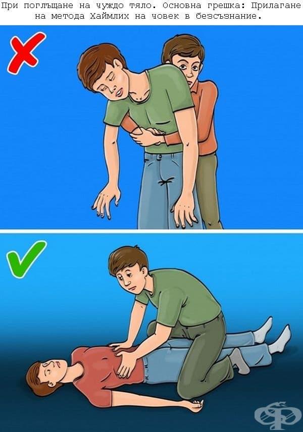 Сложете човека по гръб, натиснете 3 пъти с длани по ребрата, обърнете го настрани и отстранете чуждото тяло от устата. Малко дете трябва да се обърне настрани и да се потупа по гърба. След това обърнете детето с главата надолу, за да изпадне предметът.