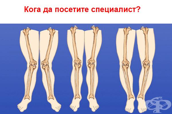 Въпреки че тези състояния са често срещани и обикновено се коригират с времето, е добре да се консултирате със специалист. Понякога извитата костна структура може да показва нещо по-сериозно. Случва се рядко, но винаги е по-добре да сте 100% сигурни!