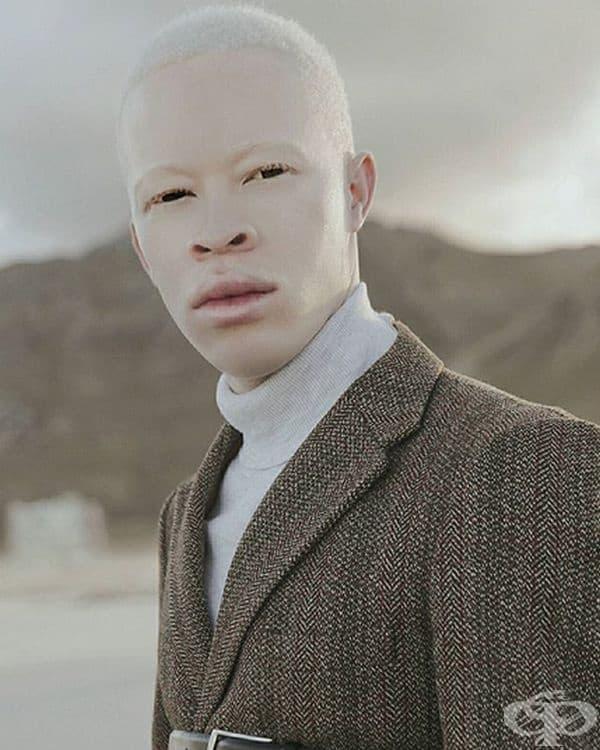 Санеле Хъба, модел. Санеле става все по-известен модел по света и използва това, за да привлече вниманието към присъствието на албиноси в света на модата. Въпреки че има много възможности за албиносите, те все още са ограничени от собствения си вид.