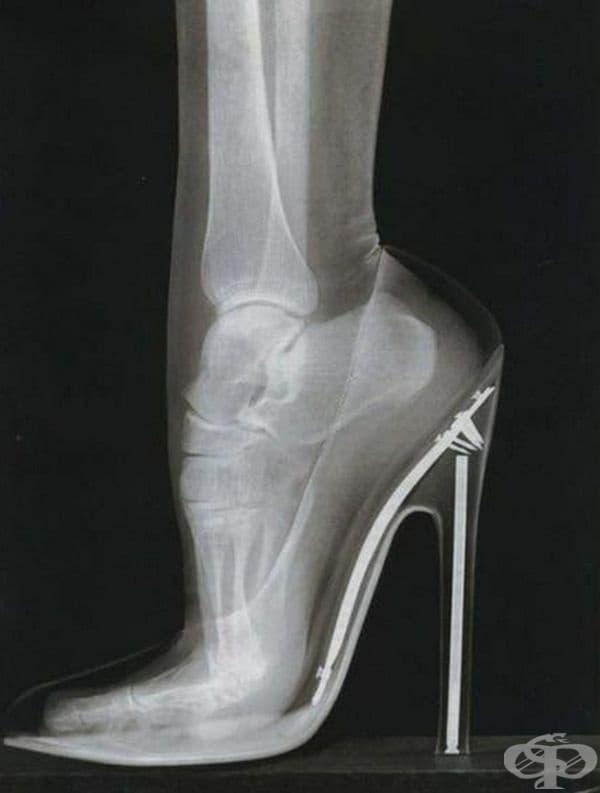 Женски крак на висок ток.