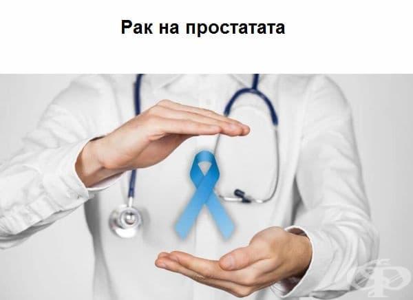 7-годишно изследване в Исландия доказва, че редовното недоспиване увеличава риска от рак на простата с 60%, поради ниските нива на мелатонин (хормонът, регулиращ съня), които благоприятстват бързото развитието на тумори.