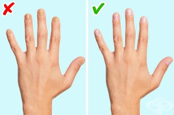 Промяна във формата на ноктите. Ако ноктите ви се удебелят и закръглят вероятно кръвоснабдяването до върховете на пръстите не е достатъчно.