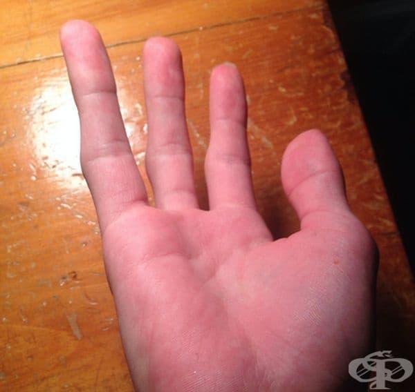 Роден с четири пръста.