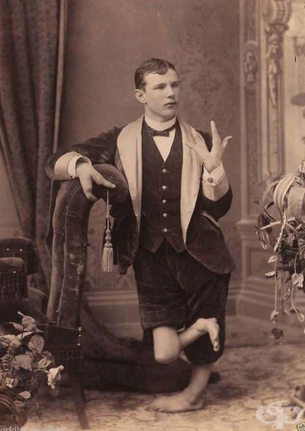 Човек с ектродактилия - деформирани ръце и крака.